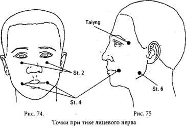 точечный массаж при тике глаз